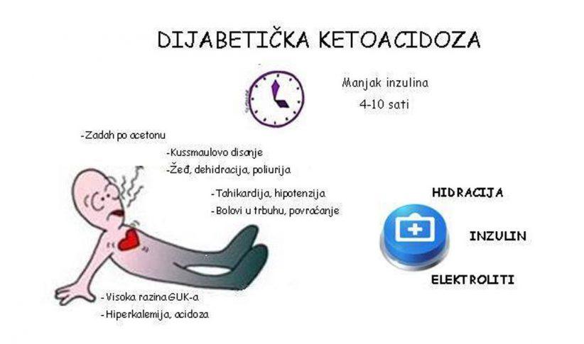 dijabetička ketoacidoza