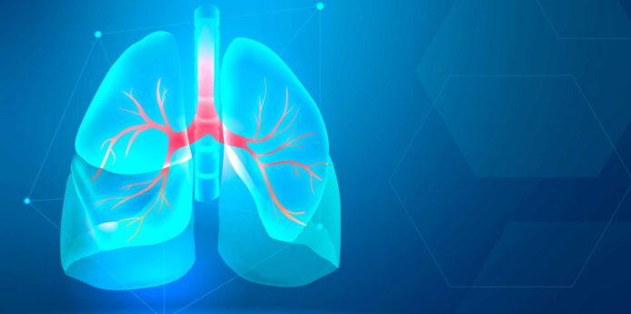 Kronična opstruktivna plućna bolest (kopb)